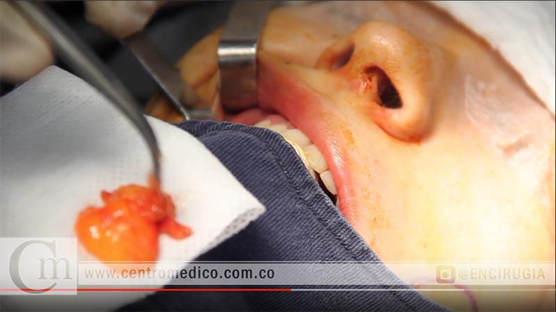 bichectomia en bogota