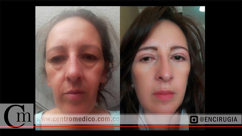 cirugias faciales
