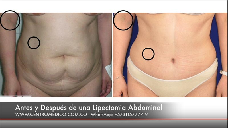 lipectomia-abdominal antes y despues
