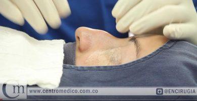 cirugia de nariz en mujeres