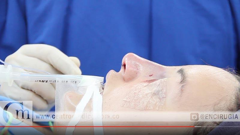 cirugia de nariz precio
