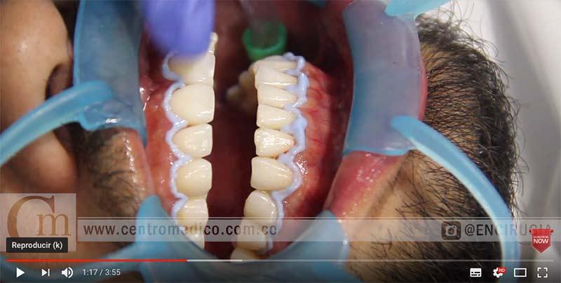 blanqueamiento dental costos en consultorio