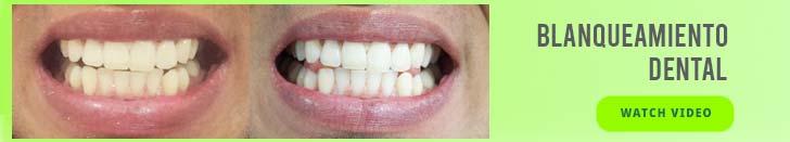 blanqueamiento dental en bogota