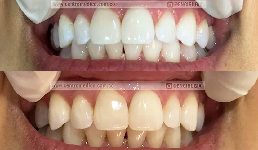 blanqueamiento dental en colombia