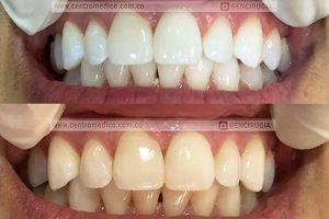 blanqueamiento dental en consultorio