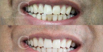carillas dentales en bogota
